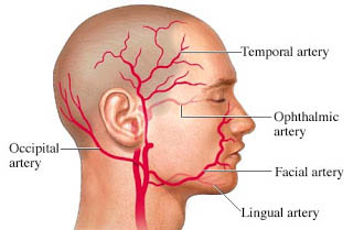 Giant Cell Arteritis Treatment in Delhi