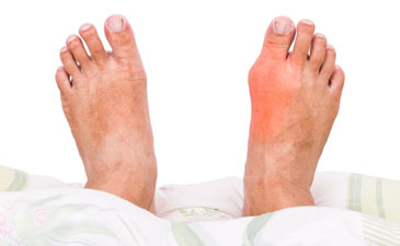 Gout Treatment in Delhi