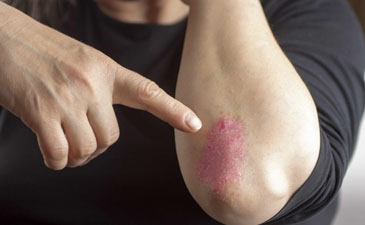 Psoriatic Arthritis Treatment in Delhi